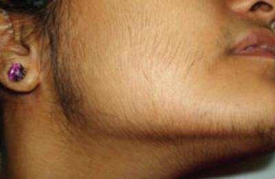 Причини продовження росту волосся після лазерної епіляції. Як допомогти клієнту.
